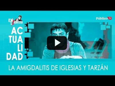 Embedded thumbnail for Video: #EnLaFrontera332 - La amigdalitis de Iglesias y Tarzán